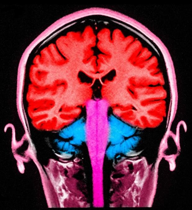Stimuler les ondes du cerveau pourrait préserver un type de mémoire