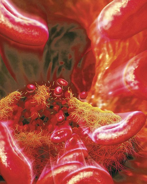 Protection thrombo-embolique VS risque hémorragique