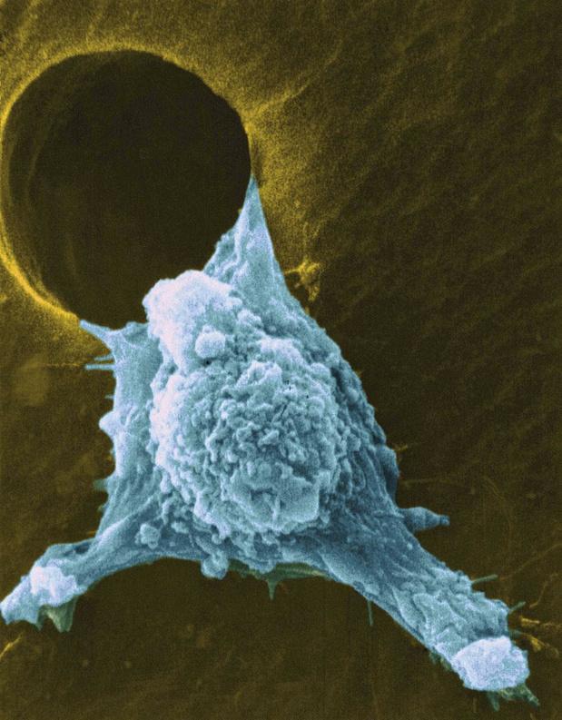 Dubbele metamorfose bij migrerende kankercellen