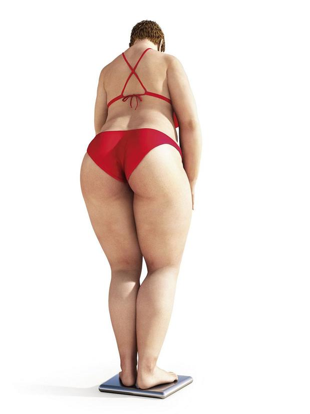 Meer chronische diarree bij obesitas
