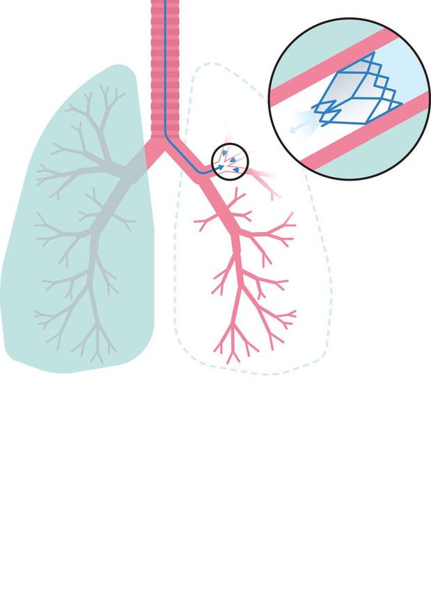 Longemfyseem: weer ademruimte dankzij longkleppen