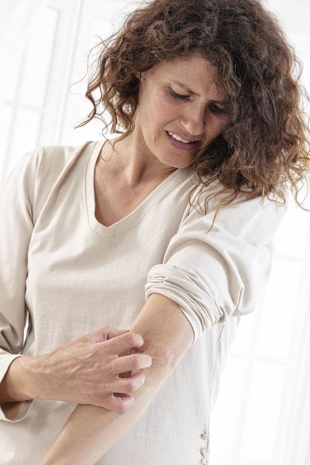 Les nouveaux médi caments contre le psoriasis