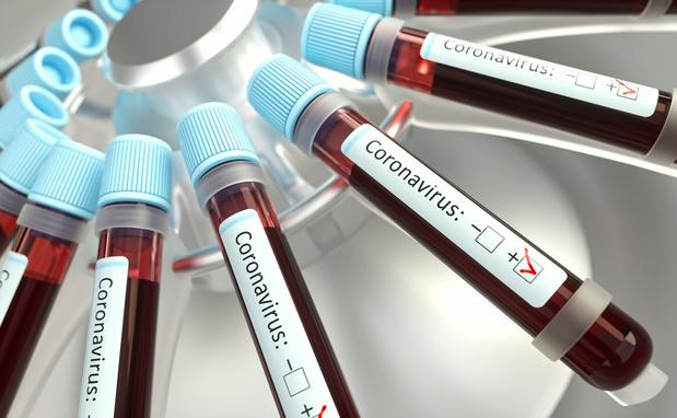 Coronavirus: l'ULiège pourra réaliser plus de 50.000 dépistages par jour