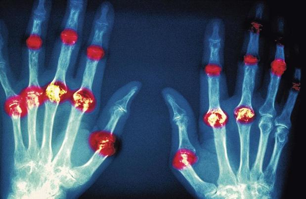 Reumatologie viert 20 jaar Patient Partners