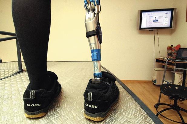 Een prothese met gevoel