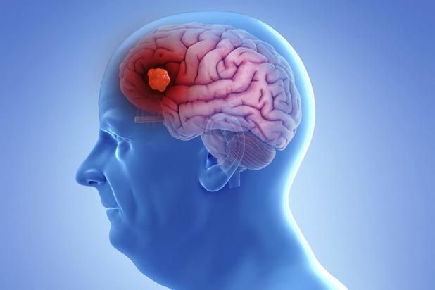 Mysterie van de dag: waarom wijzigt bij mensen met dementie het gedrag en karakter?