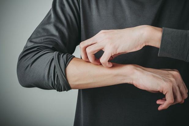 Eczéma de contact : signe d'une allergie ou d'une simple irritation