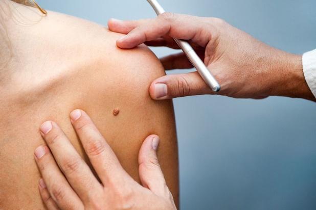 Le cancer de la peau, fléau en progression constante en Belgique
