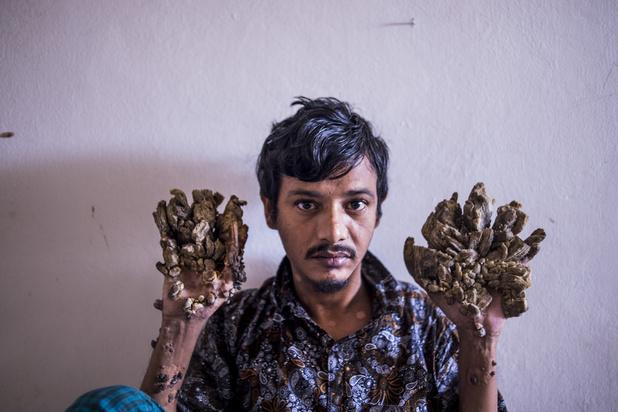 """Bangladesh: """"l'homme-arbre"""" demande à être amputé"""