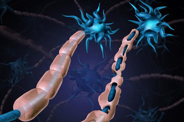 Op zoek naar de wortels van MS: 'We hebben vandaag nog te weinig zicht op de ziekte'