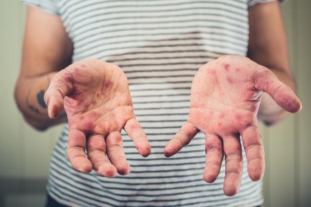 Le virus de la rougeole remet à zéro vos défenses immunitaires