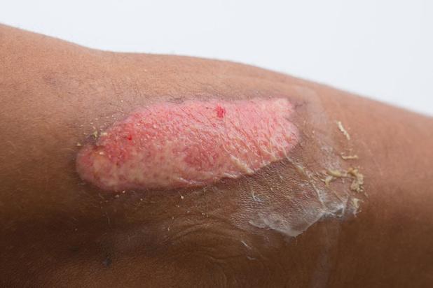 Grand brulé: les indispensables greffes de peau