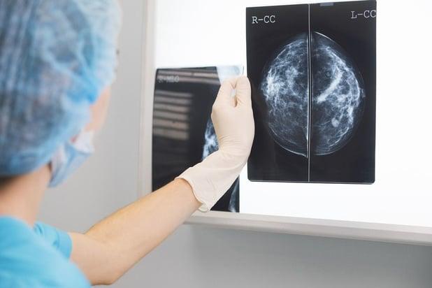 Les diagnostics de cancer ont diminué de 44% en plein confinement