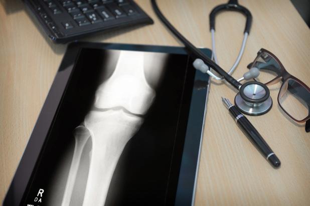 Résultats encourageants pour Novadip dans la reconstruction osseuse