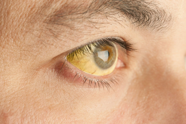 Mysterie van de dag: waarom worden we geel bij geelzucht?