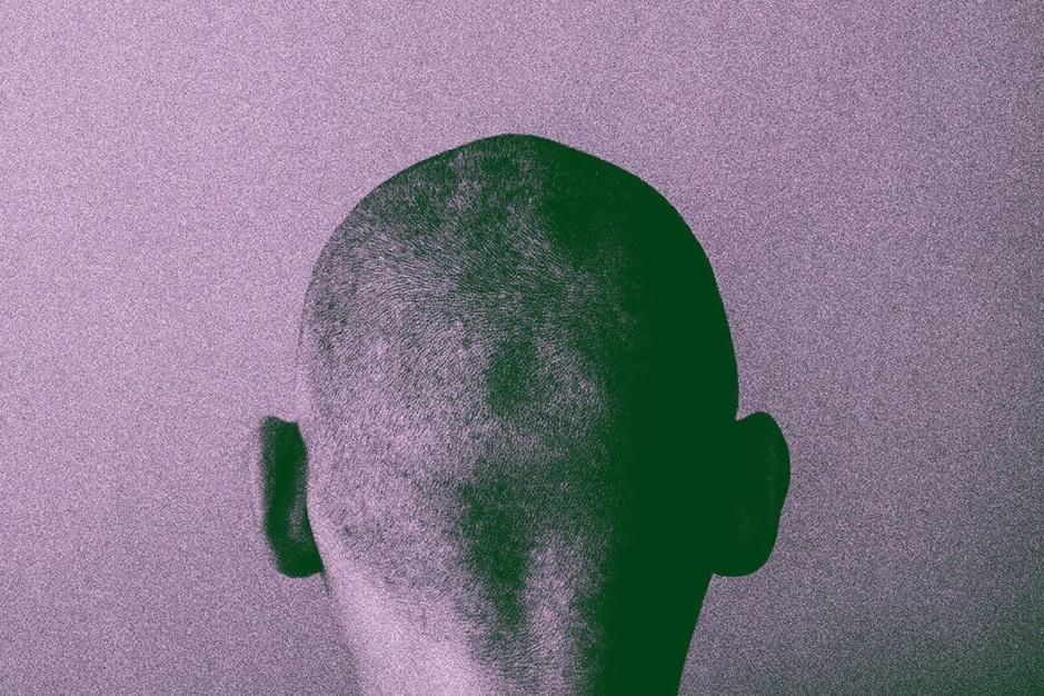 Kaal worden: deze mannen zoeken hun toevlucht tot haartransplantaties