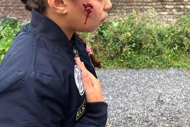 Meisje (9) op weg van school naar huis aangevallen door hond