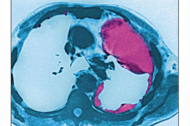 Medische overconsumptie: 'Radiologie is bij ons te veel business'