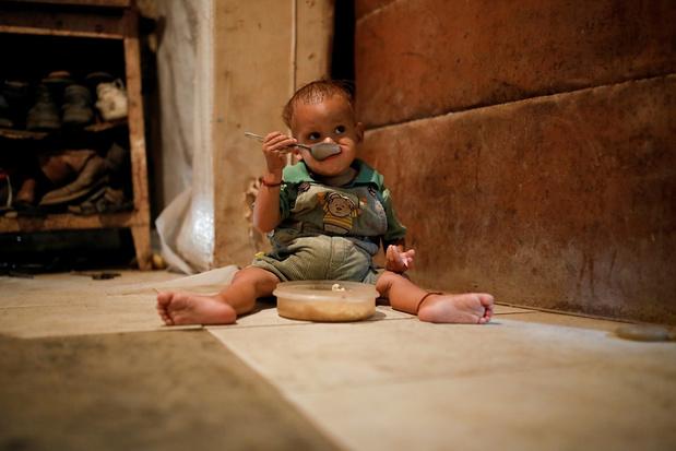 VN-rapport: zowel ondervoeding als obesitas nemen toe