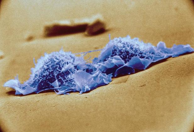 CAR-T cells dans les sarcomes exprimant HER2