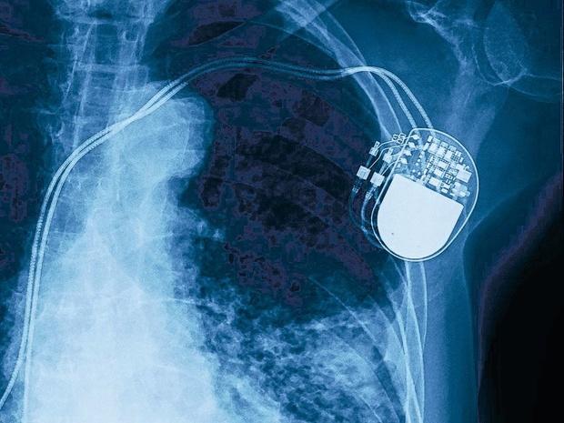 Un stimulateur cardiaque auto-alimenté, donc implanté à vie, actuellement testé chez des porcs