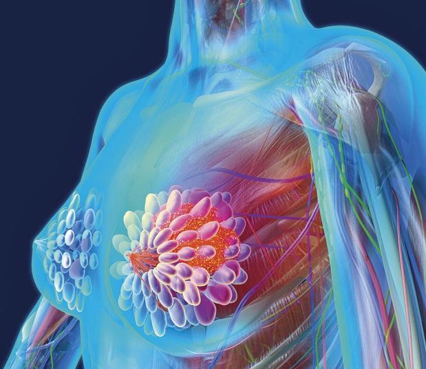 Le traitement du cancer du sein, une activité à laquelle les entreprises peuvent apporter une contribution fondamentale