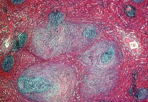 Risque de rechute et survie chez les patients atteints de lymphome de Hodgkin