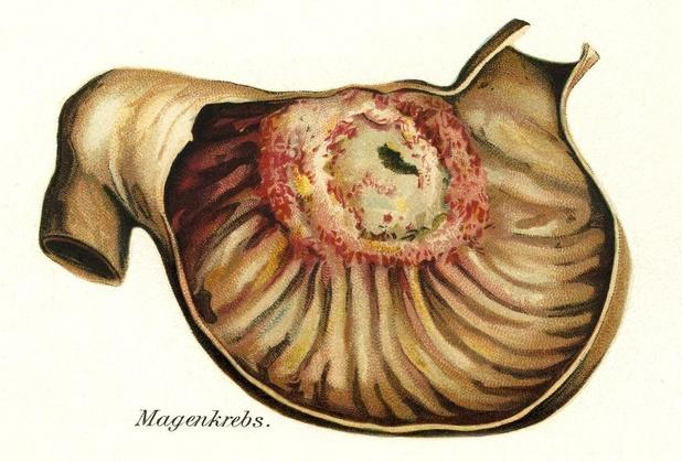 Gemetastaseerd maag- of junctie-adenocarcinoma: toevoeging ramucirumab in eerste lijn verhoogt bijwerkingen