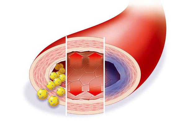 """Een """"polypil"""" om het cardiovasculaire risico te verlagen"""