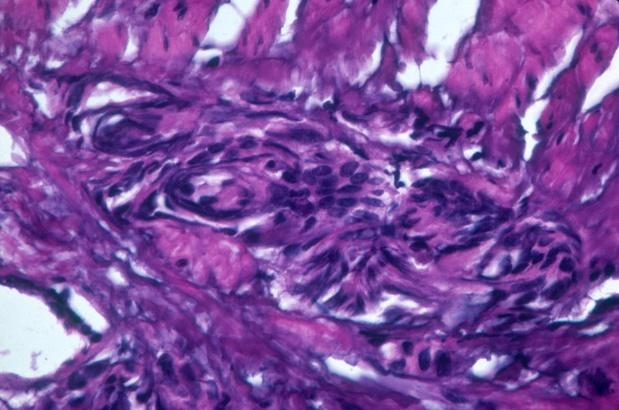 Le darolutamide efficace dans le cancer de la prostate non métastatique à haut risque