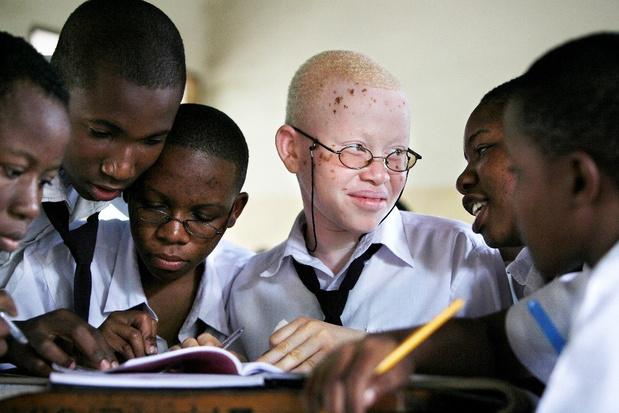 'Inclusief onderwijs is een belangrijk wapen tegen de discriminatie van albinokinderen'