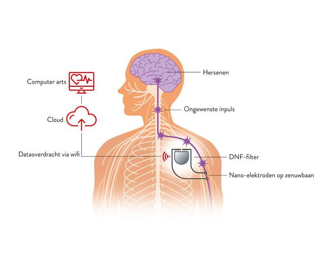 Parkinson: beven blokkeren zonder herseningreep