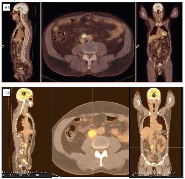 Vers une classification claire de la maladie oligométastatique