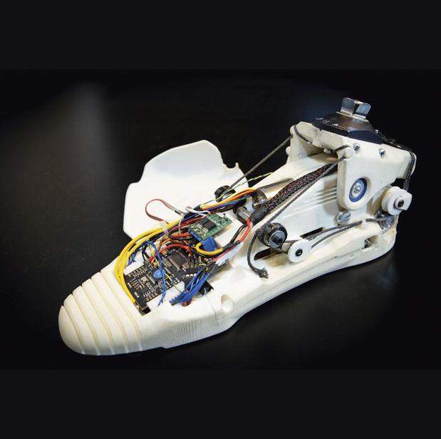 Une miniprothèse bionique, belge et révolutionnaire