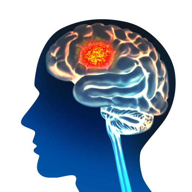 Belgische onderzoekers stap dichter bij behandeling agressieve hersenkanker