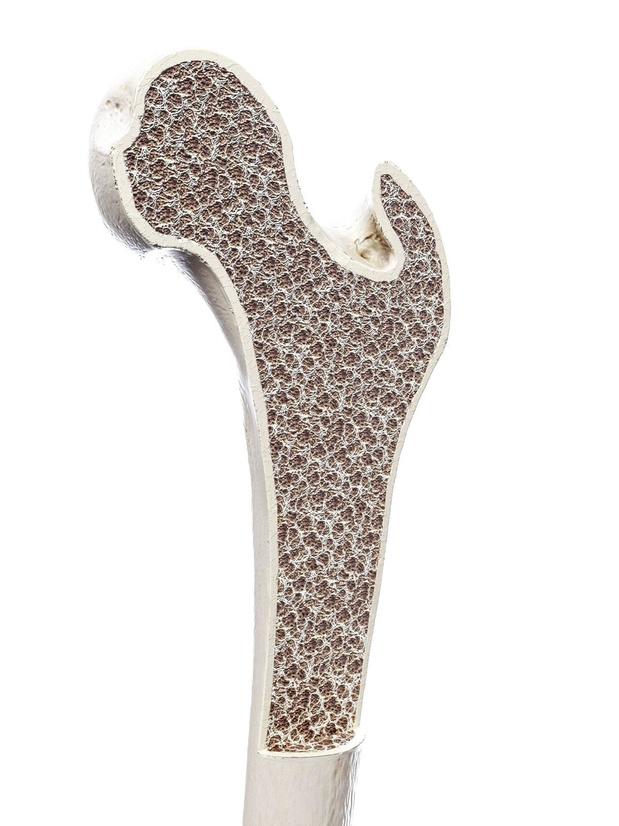 Les particules fines affaiblissent les os