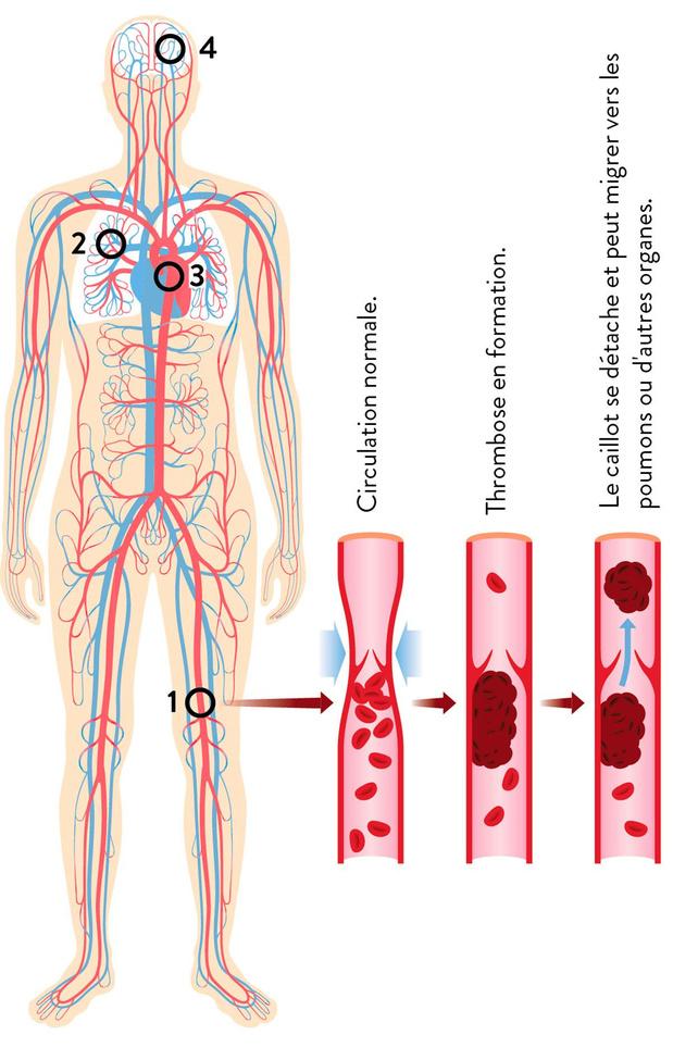 Thrombose veineuse ou artérielle?