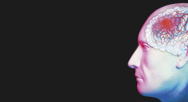 De neuroloog en de hersenbloeding