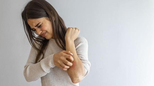 Urticaria: vervelend, maar behandelbaar!