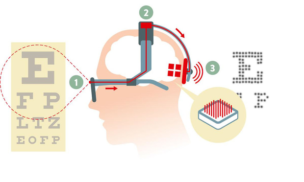 Bionisch oog brengt beeld bij blinden