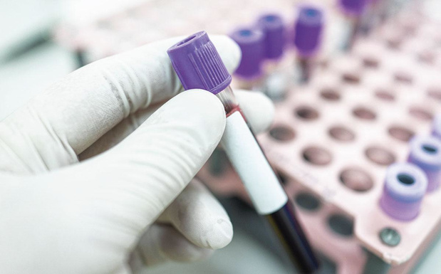 Betere overleving bij maligne bloedziekte