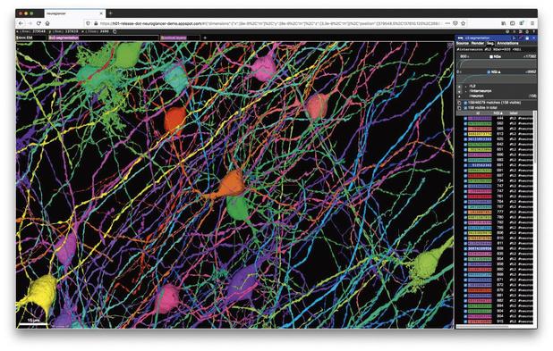 Tissu cérébral en image