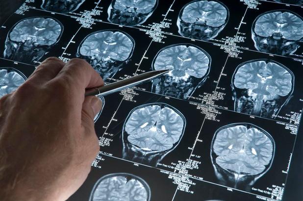 Wat mogen we verwachten van de nieuwe medicatie tegen alzheimer?