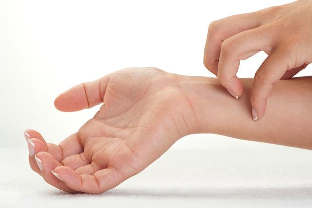 Contacteczeem: allergie of irritatie door bepaalde stoffen
