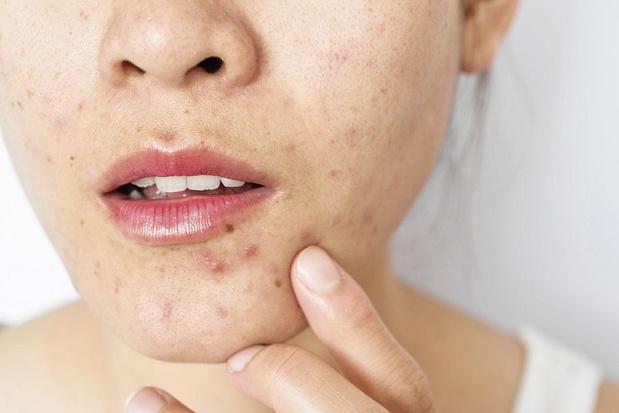 Is lokale benzoylperoxide bij acne veilig en effectief?