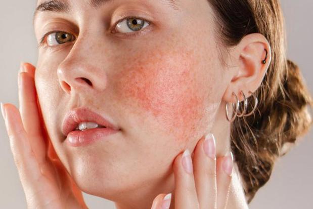 Rosacea huidziekten bij mensen met een bleke huid