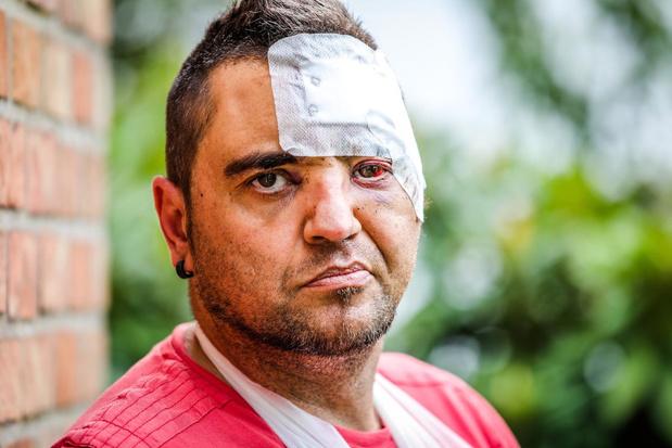 Mindervalide Steve brutaal aangevallen omdat hij respect vroeg voor nachtwinkeluitbater