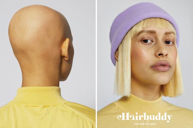 Kapperszaak The Pony Club lanceert 'hairbuddy' voor mensen met haarverlies