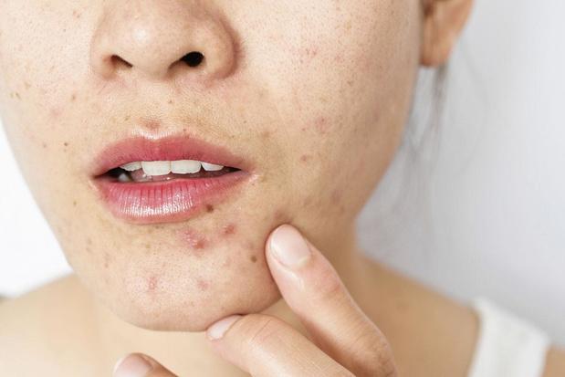 Le peroxyde de benzoyle en application locale : un traitement sûr et efficace contre l'acné ?