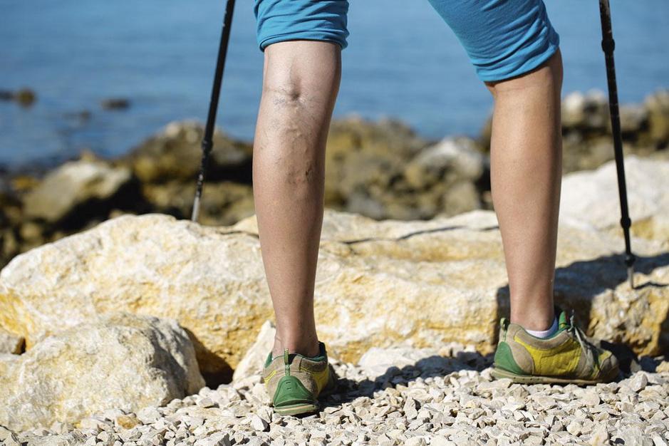 Spataders: 'Zoals Hippocrates al zei: wandelen is het beste medicijn'